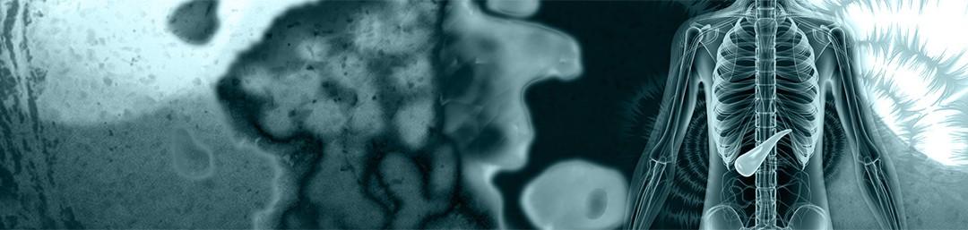 La Mécanobiologie du Cancer du Pancréas