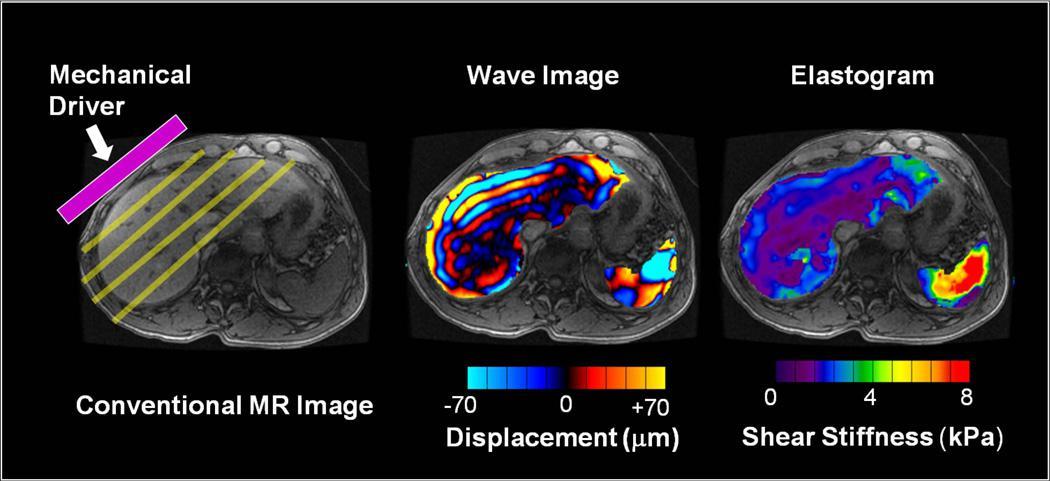 FORCE, Imaging the Force of Cancer: un programme européen H2020