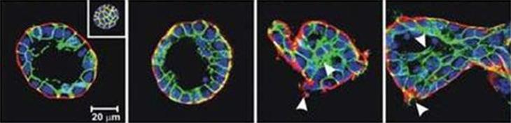 Le cancer, une maladie génétique ou mécanique ?